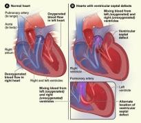 obat herbal jantung bocor pada bayi, obat herbal jantung bocor pada anak, obat bocor pada orang tua, obat bocor tanpa oprasi, obat bocor bawaan, obat bocor untuk bayi, obat bocor untuk anak, mengobati jantung bocor, cara mengobati jantung bocor secara alami, mengobati penyakit jantung bocor, cara mengatasi jantung bocor, mengatasi penyakit jantung bocor, obat alternatif jantung bocor, obat herbal jantung bocor aman, cara mengobati jantung bocor dengan alami,